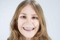Adolescente caucásico que muestra sus soportes de los dientes Presentación interior Fotografía de archivo libre de regalías