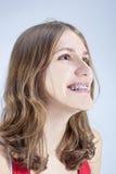 Adolescente caucásico que muestra sus soportes de los dientes Presentación interior Foto de archivo libre de regalías