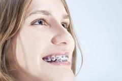 Adolescente caucásico que muestra sus soportes de los dientes Presentación interior Fotografía de archivo