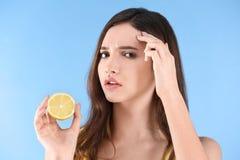 Adolescente com problema da acne imagem de stock