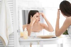 Adolescente com problema da acne imagens de stock