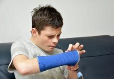 Adolescente con el brazo derecho en yeso Fotografía de archivo libre de regalías