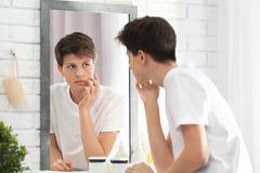 Adolescente con el problema del acné que mira en espejo Foto de archivo libre de regalías