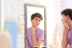 Adolescente con el problema del acné que mira en espejo Fotografía de archivo libre de regalías