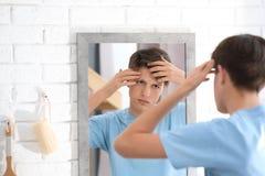 Adolescente con el problema del acné que mira en espejo Foto de archivo