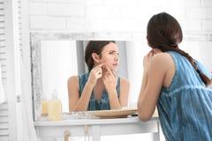 Adolescente con el problema del acné que mira en espejo Imágenes de archivo libres de regalías