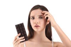 Adolescente con el problema del acné que sostiene el chocolate Fotografía de archivo libre de regalías