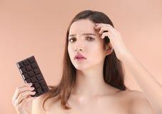 Adolescente con el problema del acné que sostiene la barra de chocolate Fotografía de archivo