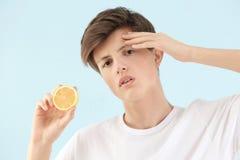 Adolescente con el problema del acné que sostiene el limón Fotos de archivo libres de regalías