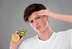 Adolescente con el problema del acné que sostiene el limón Imagen de archivo libre de regalías