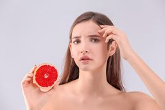 Adolescente con el problema del acné que sostiene el pomelo Fotografía de archivo libre de regalías