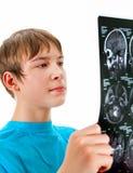 Adolescente con la radiografía Fotos de archivo