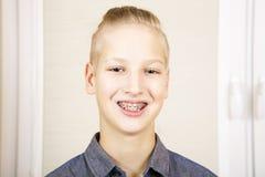 Adolescente con los apoyos en sus dientes Imágenes de archivo libres de regalías