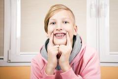 Adolescente con los apoyos en sus dientes Fotografía de archivo