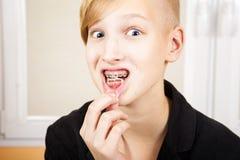 Adolescente con los apoyos en sus dientes Foto de archivo libre de regalías