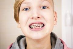 Adolescente con los apoyos en sus dientes Imagen de archivo libre de regalías