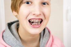 Adolescente con los apoyos en sus dientes Fotografía de archivo libre de regalías