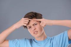 Adolescente con problema del acné Foto de archivo libre de regalías