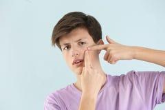 Adolescente con problema del acné Imágenes de archivo libres de regalías