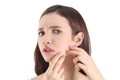 Adolescente con problema del acné Imagen de archivo