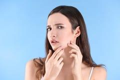 Adolescente con problema del acné Fotos de archivo libres de regalías