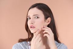 Adolescente con problema del acné Imagen de archivo libre de regalías