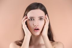 Adolescente con problema del acné Fotografía de archivo