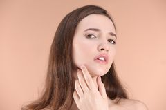 Adolescente con problema del acné Fotos de archivo