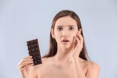 Adolescente con problema del acné Imagenes de archivo