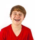 Adolescente de risa con las paréntesis dentales Fotografía de archivo libre de regalías