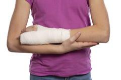 Adolescente della ragazza con un braccio bendato con gesso, primo piano, isolato su fondo bianco immagine stock