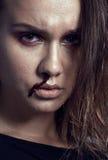 Adolescente depressioned problema con la nariz de la sangría Foto de archivo