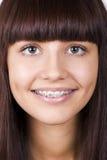 Adolescente feliz con las paréntesis. Imagen de archivo libre de regalías