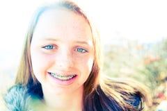 Adolescente feliz con las paréntesis en un día asoleado   Fotos de archivo libres de regalías