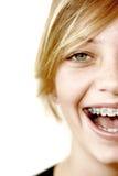Adolescente feliz con las paréntesis Foto de archivo libre de regalías
