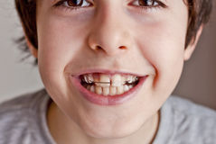 Adolescente feliz con los apoyos Fotos de archivo
