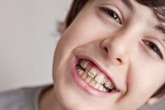 Adolescente feliz con los apoyos fotografía de archivo libre de regalías