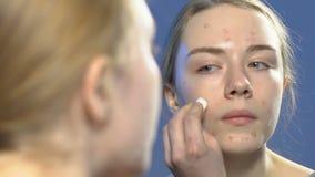 Adolescente femenino que aplica el tratamiento cosmético en espinillas de la cara, cuidado de piel del anti-acné almacen de video