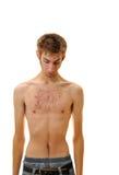 Adolescente joven que mira abajo su pecho con acné Fotos de archivo