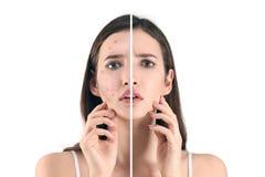 Adolescente prima e dopo il trattamento dell'acne fotografia stock libera da diritti