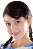 Adorable girl with braces. A over white background Royalty Free Stock Image
