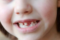The adorable girl smiles with the fall of the first baby teeth. Royalty Free Stock Photo