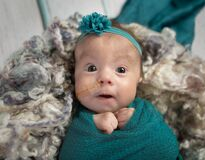 Baby girl in teal with feeding tube