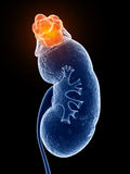 Adrenal gland cancer Stock Photo