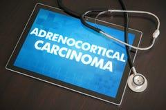 Adrenocortical, concep médico de la diagnosis del carcinoma (tipo del cáncer) Fotos de archivo libres de regalías