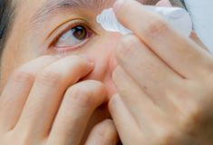 Adult Asian woman applying eye drops in her brown eyes. Eye care. Concept stock photos