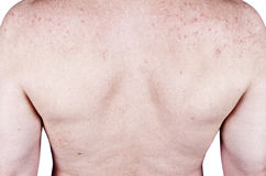 Adult Male Acne Skins Problems Blemishes, Rash Stock Photography
