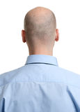 Adult man bald head rear view. Human hair loss Stock Image