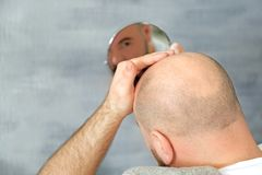 Adult man with hair loss problem looking. In mirror at home stock image