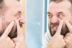 Man looking at pimples on his face. Adult man investigating his pimples on face. Guy trying to get rid of pimple squeezing it stock photo